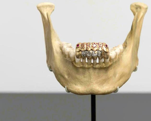 year teeth same old 12 wisdom thing molars